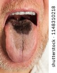 male showing black hairy tongue ... | Shutterstock . vector #1148310218
