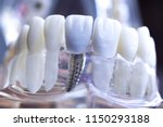 dentist dental teeth teaching... | Shutterstock . vector #1150293188