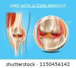 knee with torn meniscus... | Shutterstock .eps vector #1150456142