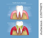 human teeth stages of gum... | Shutterstock .eps vector #1150794875