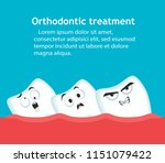 orthodontic treatment banner...   Shutterstock .eps vector #1151079422