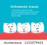 orthodontic braces banner with... | Shutterstock .eps vector #1151079425