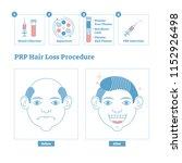 prp procedure  men's beauty and ... | Shutterstock .eps vector #1152926498