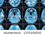 artificial intelligence in...   Shutterstock . vector #1155104242