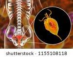female trichomoniasis  3d... | Shutterstock . vector #1155108118