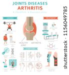 joints diseases. arthritis...   Shutterstock .eps vector #1156049785