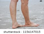 close up of varicose veins ... | Shutterstock . vector #1156147015
