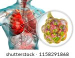 bacterial pneumonia  medical... | Shutterstock . vector #1158291868