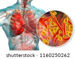 lung infection caused by... | Shutterstock . vector #1160250262