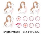 woman with breast cancer... | Shutterstock .eps vector #1161499522
