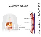 mesenteric ischemia is an... | Shutterstock .eps vector #1163609998