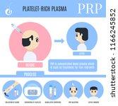 platelet rich plasma male hair... | Shutterstock .eps vector #1166245852
