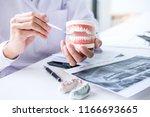 dentist hand holding of jaw... | Shutterstock . vector #1166693665