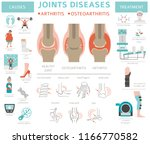 joints diseases. arthritis ... | Shutterstock .eps vector #1166770582