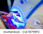 adult female receiving teeth... | Shutterstock . vector #1167879892