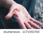 the wounded palm of the person...   Shutterstock . vector #1171552765