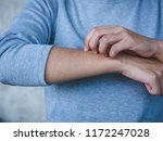 close up of woman scratching... | Shutterstock . vector #1172247028