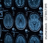 the x ray of the human brain... | Shutterstock . vector #1173017395