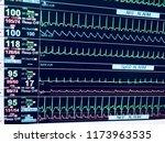 vital sign ekg monitor. medical ... | Shutterstock . vector #1173963535