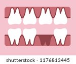 tooth icons vector | Shutterstock .eps vector #1176813445