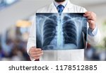 young man doctor holding x ray | Shutterstock . vector #1178512885