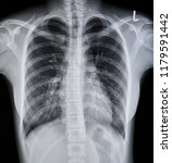 film chest x ray pa up right ... | Shutterstock . vector #1179591442
