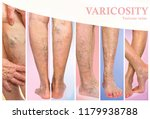 the female legs with veins... | Shutterstock . vector #1179938788