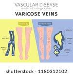 vascular diseases. varicose... | Shutterstock .eps vector #1180312102