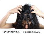 women head with dandruff caused ... | Shutterstock . vector #1180863622