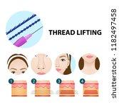 thread lifting vector... | Shutterstock .eps vector #1182497458
