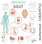 joints diseases. gout symptoms  ... | Shutterstock .eps vector #1182645712