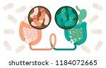 fecal microbiota transplant ... | Shutterstock .eps vector #1184072665