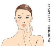 beauty girl. rash on the face... | Shutterstock .eps vector #1184129398