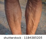 legs are varicose veins. | Shutterstock . vector #1184385205