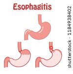 human stomach in a flat style... | Shutterstock .eps vector #1184938402