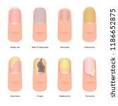 cartoon color nail diseases... | Shutterstock .eps vector #1186652875
