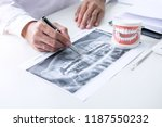 male doctor or dentist writing... | Shutterstock . vector #1187550232