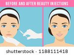 women's anti aging skin care....   Shutterstock .eps vector #1188111418
