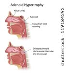 adenoid hypertrophy   Shutterstock .eps vector #119184292