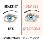 dry eye syndrome. eye disease....   Shutterstock .eps vector #1192747045