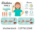 diabetes type 1 infographics.... | Shutterstock .eps vector #1197611368