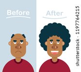 before and after shots of...   Shutterstock .eps vector #1197764215