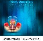 periodontitis gum disease... | Shutterstock .eps vector #1198921915