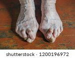 barefoot which have bunion ... | Shutterstock . vector #1200196972