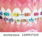 Small photo of Close up orthodontic model and dentist tool - demonstration teeth model of multi color of orthodontic bracket or brace. colorful braces.