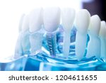 dentist dental teeth teaching...   Shutterstock . vector #1204611655
