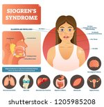 sjogrens syndrome vector... | Shutterstock .eps vector #1205985208