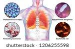 human respiratory pathogens ... | Shutterstock . vector #1206255598