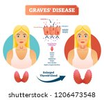 graves disease vector... | Shutterstock .eps vector #1206473548