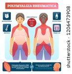 polymyalgia rheumatica vector... | Shutterstock .eps vector #1206473908